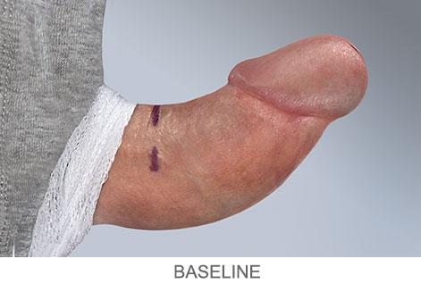 XIAFLEX-baseline