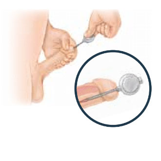Penile-Implant-11